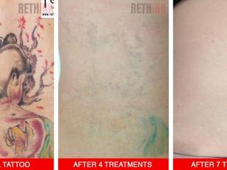 back tattoo removal photo