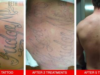 half back tattoo removal