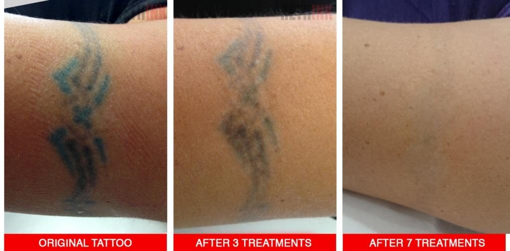 armband tattoo removal