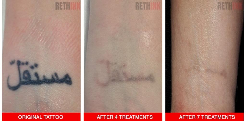 wrist tattoo removal