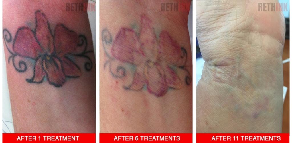 wrist tattoo removal photo