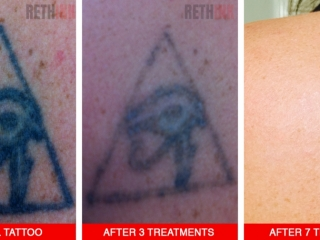 upper back tattoo removal