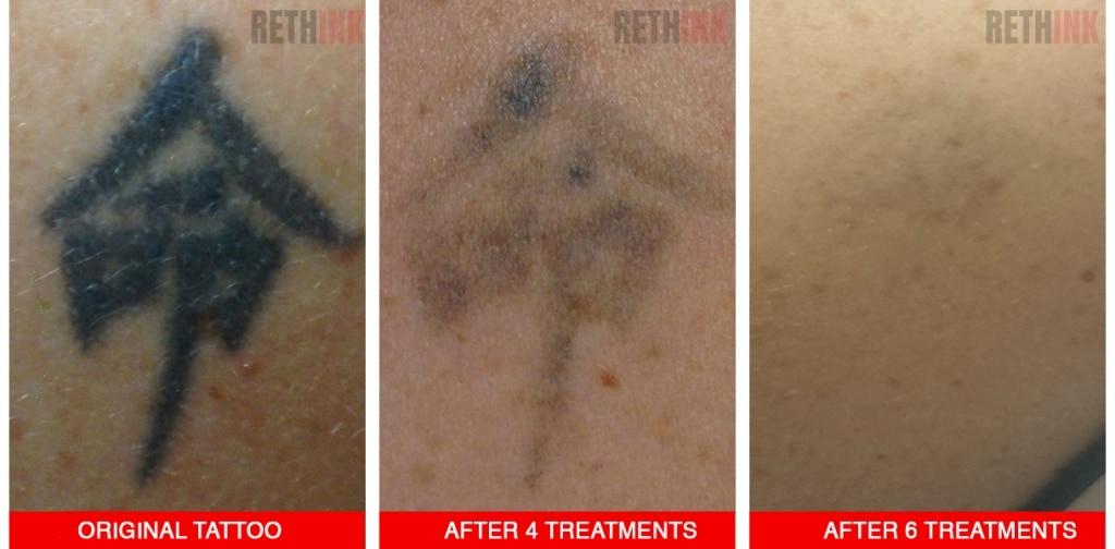 shoulder tattoo removal